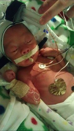 My tiny NICU baby.premature Born at 30 weeks, due to severe preeclampsia. This little girl is amazing to me. Love you Aubree! Preemie Babies, Preemies, Premature Baby, Nicu Nursing, Strong Willed Child, 30 Weeks, Small Baby, Baby Born, What Is Life About