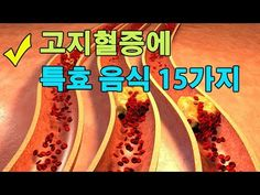 고지혈증을 예방하는 착한음식 5가지 - YouTube
