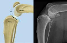 Canine stifle joint with a corresponding x-ray. #dogs#pets#canine#canine surgery#dog surgery#veterinary#veterinarian #veterinary surgeon#dog health#pet health#dog health