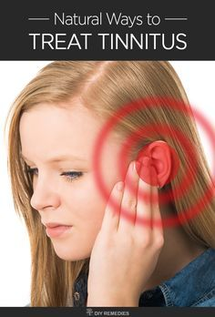 Natural Ways to Treat Tinnitus  Tinnitus – a condition of hearing constant ringing sounds or noises in the ear when no one else can hear. It is not a serious health problem but causes frustration whenever you're experiencing those hissing, clicking, ringing or other weird sounds. #Tinnitus #Ear #hearingproblem