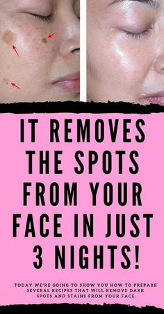 Exceptional #beautytips detail are offered on our internet site. Read more and you wont be sorry you did.