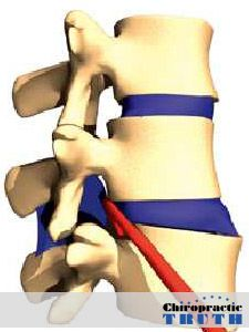 A Subluxation is when one or more vertebrae lose their normal position, they interfere with the nerves they were meant to protect.
