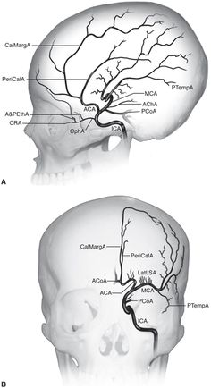 More great images of the internal carotid artery.