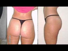 GET INSTANT ACCESS HERE :http://dietingplan.org/nkbeauty How to get rid of cellulite naturally Fast At home -There are a lot of over-the-counter cellulite creams ,lotions that claim to help remove cellulite completely and Fast.  . In this video will show you simple tips to remove cellulite Naturally and Fast.
