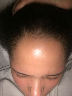 How to get longer thicker hair. Hair loss treatment for women. Thinning edges. How to grow your edges.
