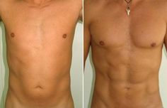 Liposuction results - six pack was covered by fat tissue.