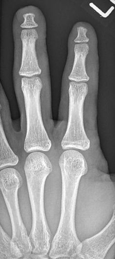 See differential for acro-osteolysis: PINCHFO mnemonic. The cause of this young man's acro-osteolysis was not known. Pediatric Radiology, Bone Diseases, Nurse Practitioner, Acro, Pediatrics, Frost, Anatomy, Health Care, Medicine