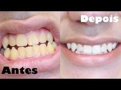 Como Clarear os Dentes Na Hora! Eliminar Tártaro e Gengivite - YouTube