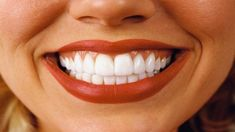 Some teeth whitening products can cause tooth sensitivity. Ask your dentist about safe options. Teeth Whitening Remedies, Teeth Whitening System, Natural Teeth Whitening, Remedies For Tooth Ache, Color Correcting Concealer, Perfect Teeth, Tooth Sensitivity, Teeth Bleaching, Best Skin Care Routine