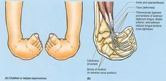 equinovarus foot - Google Search