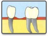zahnimplantate Disney Characters, Dental Implant Cost, Dental Implants, Hungary, Health