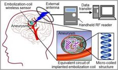 New Technology to Monitor Brain Aneurysms - Aneurysms can occur in any blood vessel in the body and usually cannot be detected unless there is a rupture or leakage. Subarachnoid Hemorrhage, Psychology Studies, Brain Aneurysm, Brain Science, Medical Dental, Brain Activities, Blood Vessels, Neuroscience, My Brain