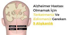 Sigara ve Alkol kullananlarda Alzheimer orani daha yüksek!..