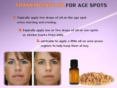 Frankincense oil for age spots Age spots are annoying. However, you can now lightening your age spots naturally by using essential oils. Frankincense oil for age spots is a good remedy for lightening age spots. Frankincense is known as a holy oil and has a heavily sweet aroma. Frankincense also promotes general skin health. It [...]…