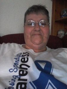 A.S. Face 1285: Connie Main :Click on picture to go to the site http://thefacesofankylosingspondylitis.com