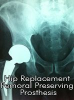 Hip Arthroplasty, otherwise known as Total Hip Replacement is a surgical procedure to replace the articular part of the hip joint with an artificial j. Hip Replacement, Healthy Tips, Surgery, Fun Facts, Health Care, Health Fitness, Education, Style, Swag