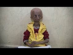 Indian Boy with Progeria Syndrome becomes an Inspiration for all | GONONO-AMAZING TO SEE