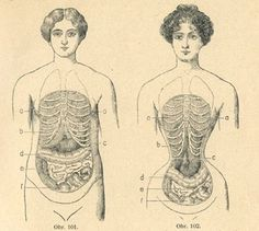 Love this image.  The difference between a healthy, normal waist and a waist that has been shaped by a corset.