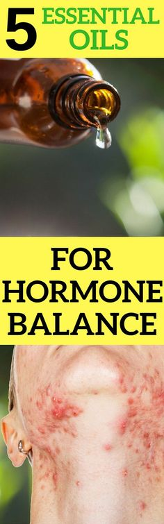 In today's article we will reveal some essential oils that will help you to treat hormonal imbalance.