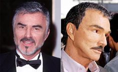This is an article on celebrity men who have had plastic surgery that went wrong in a big way. Can't get over Burt Reynolds!