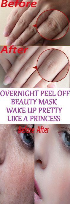 hair removal permanent facials: Overnight Peel Off Beauty Mask, Wake Up Pretty Like A Princess