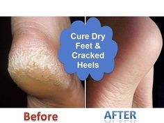 DIY Home Solution to Dry Scaly Cracked Heels – Health n Tips