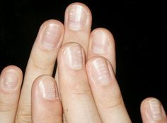 Info On Your Fingernails