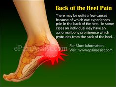 Home Remedies for Arthritis & Joint Pain - Everyday Remedy Plantar Fasciitis Exercises, Plantar Fasciitis Treatment, Plantar Fasciitis Shoes, Sciatica Pain Relief, Foot Pain Relief, Heel Spur Relief, Migraine Relief, Achilles Pain, Heel Pain