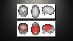 Craniosynostosis - Virtual Cranial Vault (skull) Reconstruction     -----     MAYO CLINIC     --     rmm