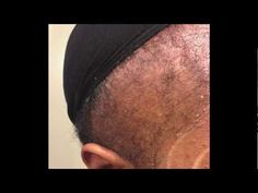 This is a video showing my edge regrowth in less than 10 weeks! I went from no edges to fuller edges! Where you can find Pure R. Natural Red Hair, Natural Hair Growth, Natural Hair Styles, Long Hair Styles, Thinning Hair Remedies, Hair Remedies For Growth, Edges Hair, Regrow Hair, Natural Haircare