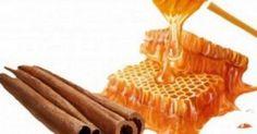 Clear Acne overnight with a Honey, Aloe vera and Cinnamon Face Mask Cinnamon Powder, Honey And Cinnamon, Pure Honey, Home Remedies For Acne, Natural Home Remedies, Clear Acne Overnight, Overnight Mask, Turmeric Lemonade, Kai