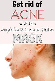 How to get rid of acne with homemade aspirin and lemon juice mask.
