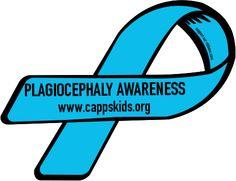 plagiocephaly awareness