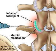 An epidural steroid injection (ESI) is a minimally invasive procedure that can help relieve neck, arm, back, and leg pain caused by inflamed spinal nerves. ESI may be performed to relieve pain caused by spinal stenosis, spondylolysis, or disc herniation.