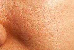 How to minimize pores? How to make pores smaller? Remedies to shrink pores naturally. Get rid of large pores. How to reduce pore size? How to unclog pores? Beauty Care, Diy Beauty, Beauty Skin, Beauty Hacks, Face Beauty, Fashion Beauty, Reduce Pore Size, Tips Belleza, Facial Care