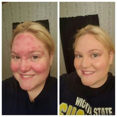 Younique before and after. Amazing! https://www.youniqueproducts.com/laurarluna/business #youniquenaturallooks