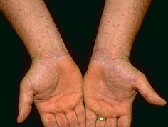 Autoimmunity or some unknown environmental triggering agent has been attributed to have caused lichen planus but the exact cause is not yet determined. Development of these lesions occurs as a result of associated underlying inflammation. Medications such as anti-malarial agents, beta-blockers, thiazide diuretics along with dyes, chemicals, pigments, gold, iodides, mercury etc are considered as the most important causes of lichen planus.
