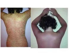 Miraculous cure for psoriasis using my miracle supplement!  More testimonials…
