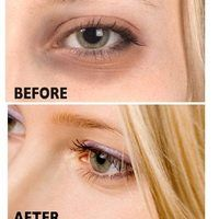 Many of us deal with dark circles under the eyes. Aside from covering them up with makeup, there are simple things you can do to lighten the circles. With a few ingredients from your kitchen, you can get rid of those annoying circles.