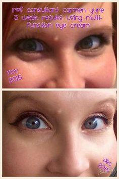Bye bye puffy bags, hello Rodan + Fields Multi-function Eye Cream! Order yours today at christyc.myrandf.com #beautifulskinisin #eyecream