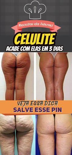 Acabei com minhas celulites em 3 dias usando isto antes de dormir!!! #dicas #caseiras #acabe #com #celulite #em #três #dias #receita #receitas