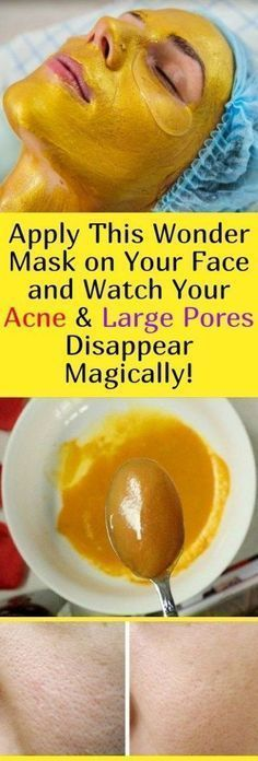 Apply This Wonder Mask on Your Face and Watch Your Acne & Large Pores Disappear Magically! : Apply This Wonder Mask on Your Face and Watch Your Acne & Large Pores Disappear Magically! Natural Treatments, Skin Treatments, Natural Remedies, Acne Remedies, Health Remedies, How To Disappear, Homemade Face Masks, Peeling, Facial Masks