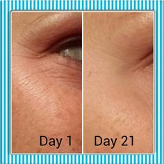 #Redefine Before and After! You need this in your life!   #getridofcrowsfeet #RodanandFields #skincare  sarahkwheeler.myrandf.com