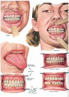 Frank H Netter illustration, teeth and tongue