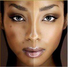 Treating Hyperpigmentation following Acne