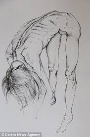 """Képtalálat a következőre: """"anorexia drawing"""""""