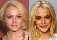 Plastic Surgery Gone Wrong, Star Wars, Lindsay Lohan, Album, Cinema, Deco, Rhinoplasty, Plastic Surgery, Dancing With The Stars