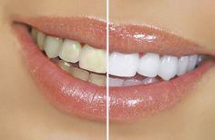 Con tempo i denti si possono ingiallire a causa del fumo,caffè,tè,zuccheri ecc.Ecco le alternative naturali allo sbiancamento costoso e nocivo del dentista