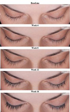 New Latisse 5mL size gives you 10 weeks of product!