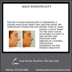 The key to male rhinoplasty is preserving a strong masculine shape that matches both the individual's character and desires. Male Rhinoplasty procedures are performed @LamFacialPlastics by Dr Lam personally, in Dallas, Texas. #LamFacialPlastics #DallasPlasticSurgery #PlasticSurgery #DrSamLam  #Rhinoplasty #NoseJob #MaleNoseJob